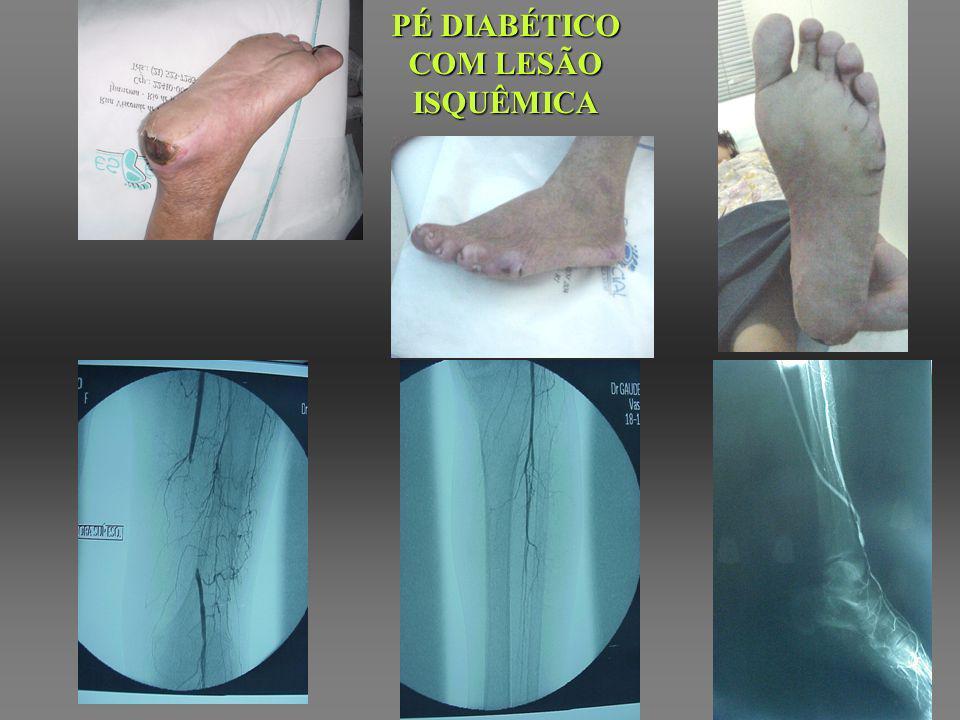 ÚLCERAS DIAGNÓSTICO DIFERENCIAL - ANAMNESE - EXAME FÍSICO - EXAMES COMPLEMENTARES