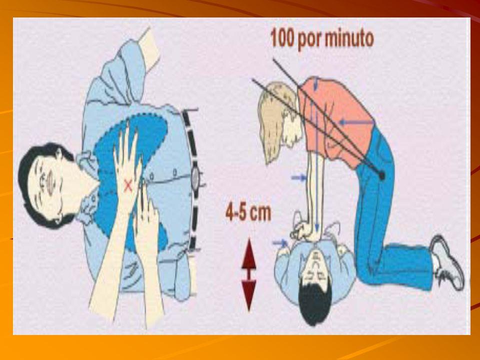 QUAL É A TÉCNICA PARA MASSAGEM CARRDÍACA? Com o paciente em decúbito dorsal, o assistente deve colocar as mãos na porção inferior do externo, um pouco