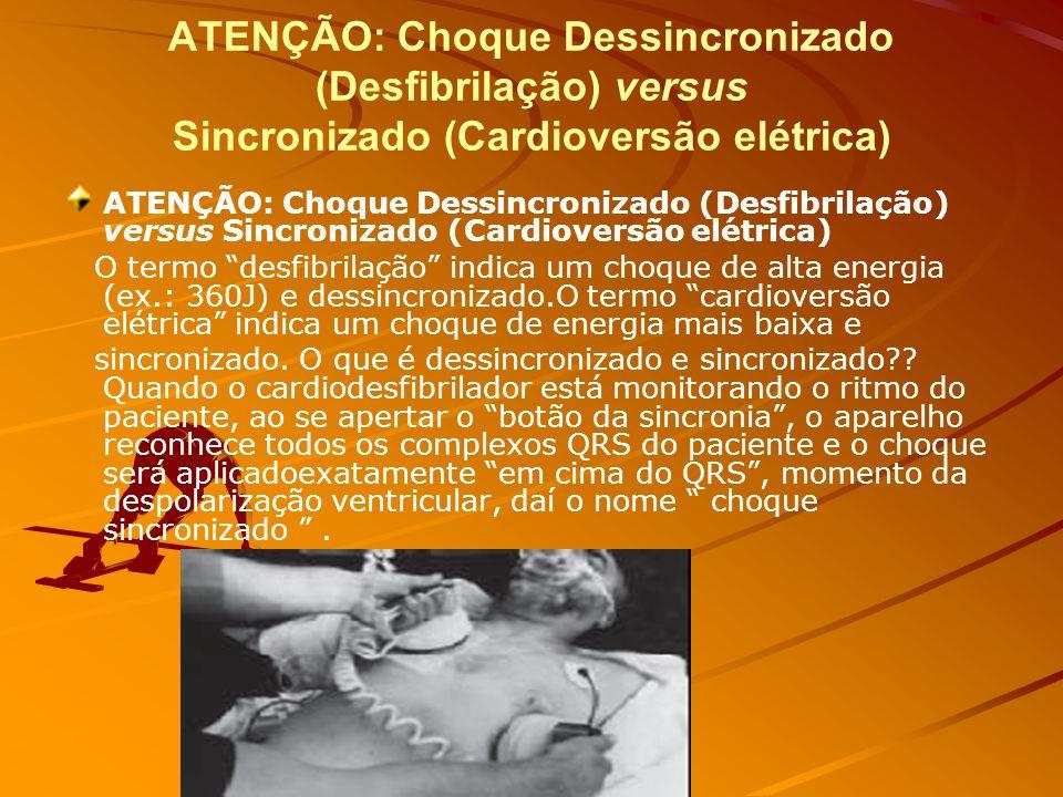 D (defibrillation - monitorização de desfibrilação) O choque desfibrilatório é a única medida confiável capaz de reverter uma fibrilação ventricular e