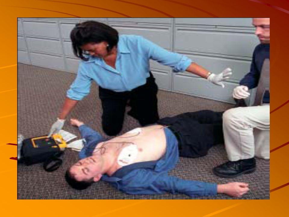 O AED é portátil e provido de eletrodos adesivos, facilmente posicionados no paciente. O aparelho basta ser ligado, que automaticamente reconhece se o