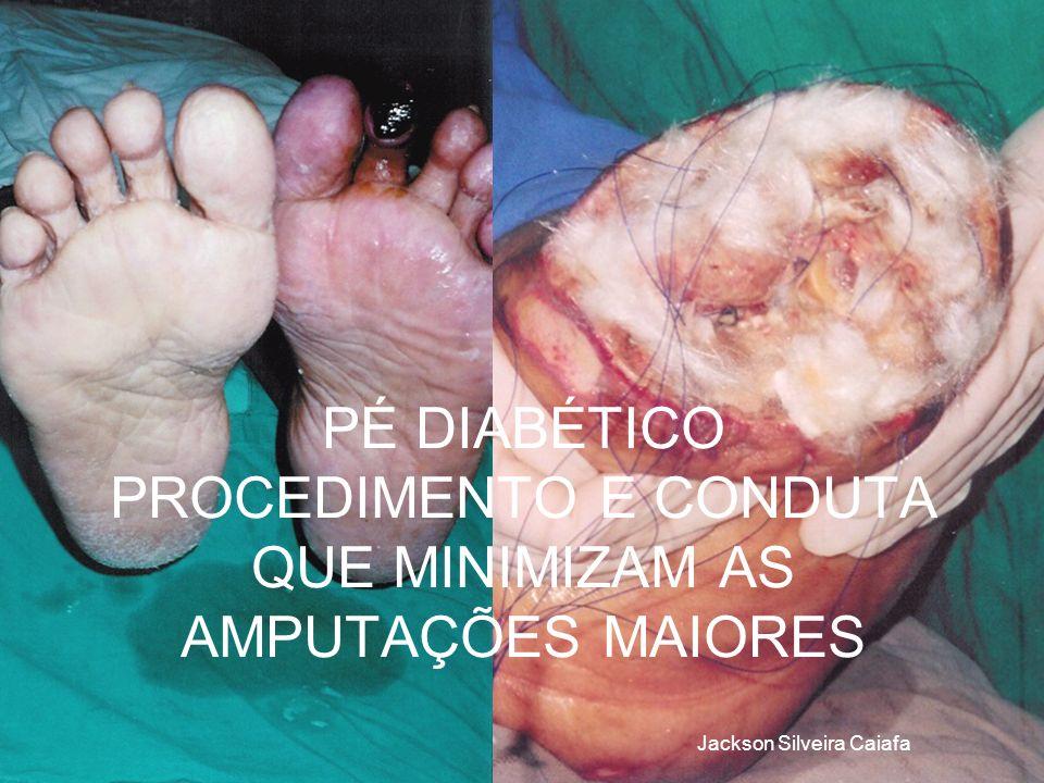 CONCEITO Entende-se como pé diabético a presença de pelo menos uma das alterações neurológicas, vasculares e infecciosas que podem ocorrer no pé do paciente portador de diabetes.