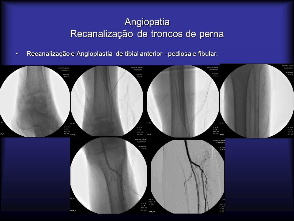 Angiopatia Recanalização de troncos de perna Recanalização e Angioplastia de tibial anterior - pediosa e fibular.Recanalização e Angioplastia de tibia