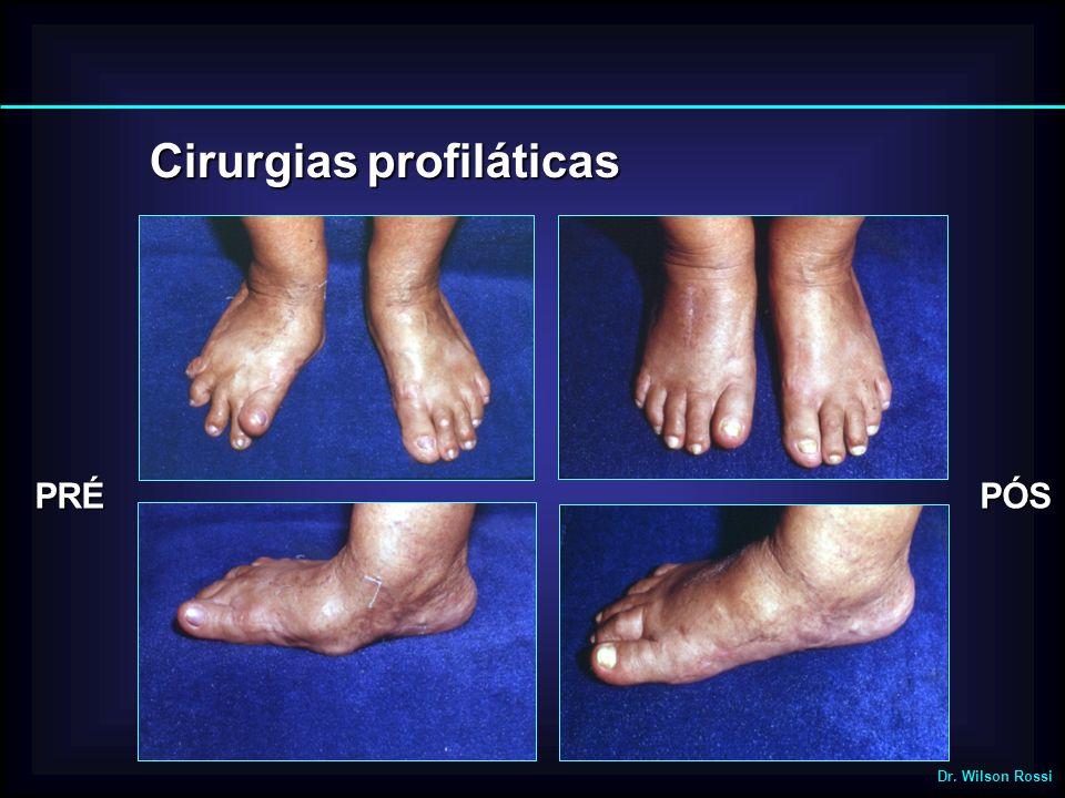 Cirurgiasprofiláticas Cirurgias profiláticas PRÉPÓS Dr. Wilson Rossi
