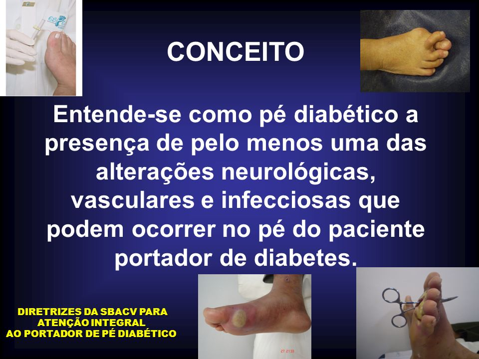 CONCEITO Entende-se como pé diabético a presença de pelo menos uma das alterações neurológicas, vasculares e infecciosas que podem ocorrer no pé do pa