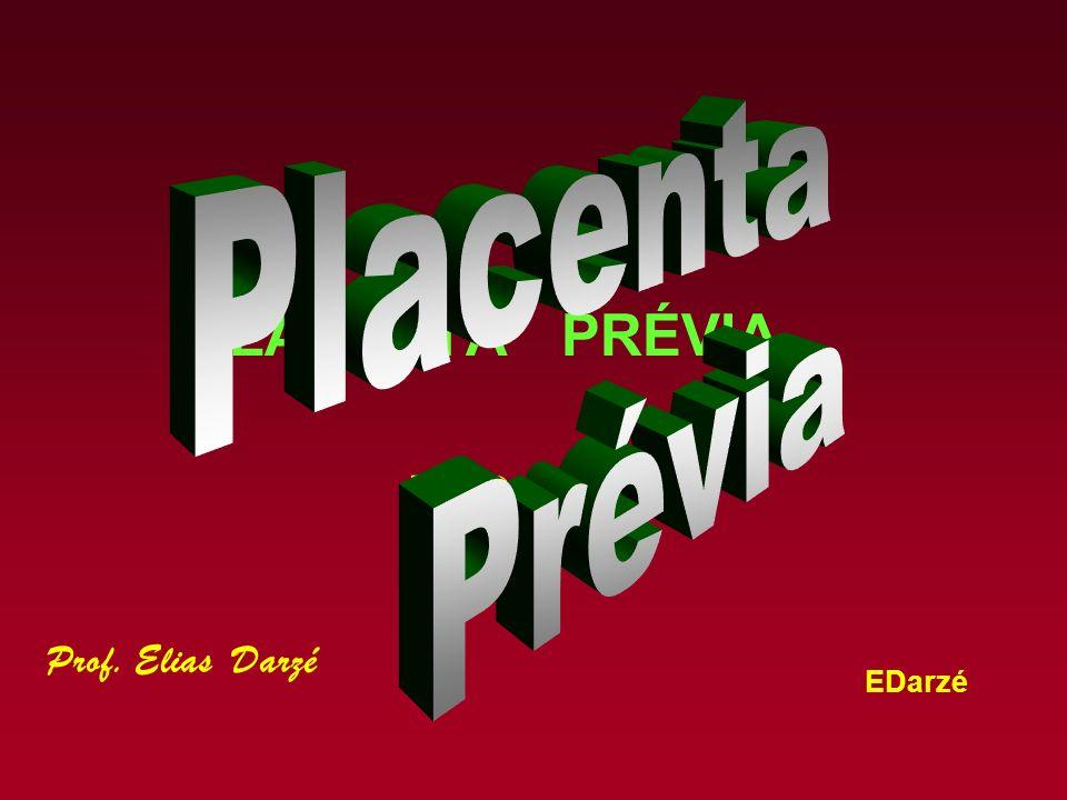 EDarzé Placenta Prévia - Conceito Placenta Prévia, termo genérico, abrange hoje todas as inserções da placenta no segmento inferior do útero.