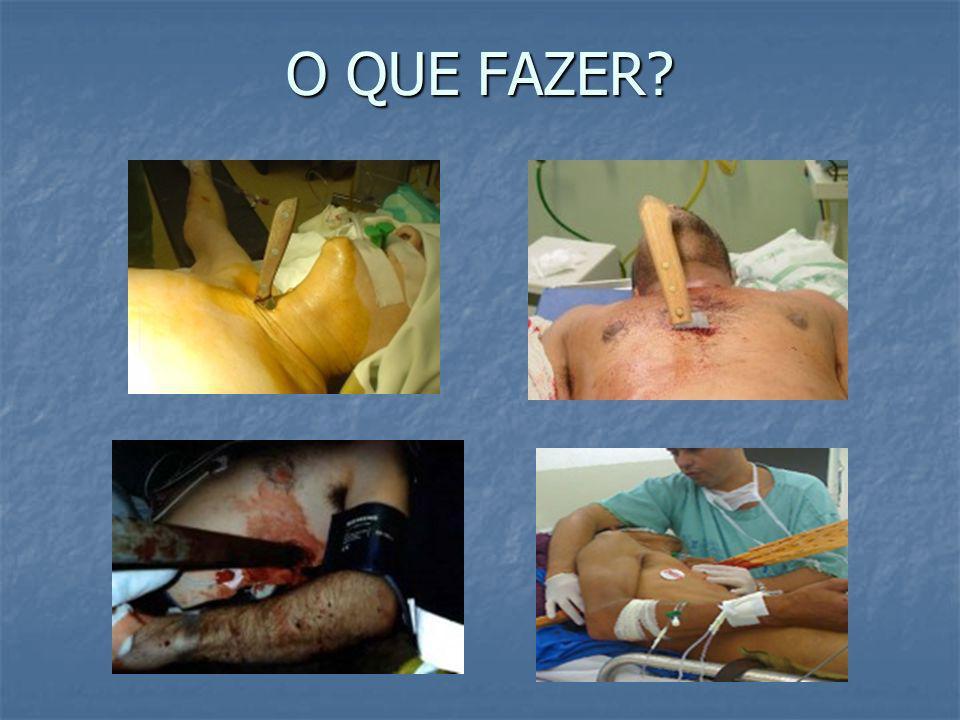 CONDUTA ARTERIOGRAFIA necessária para avaliação da extensão da lesão e planejamento cirúrgico PRÓTESE