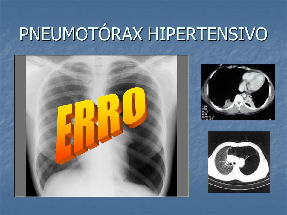 PNEUMOTÓRAX HIPERTENSIVO Quadro clínico: dor torácica Quadro clínico: dor torácica dispnéia intensa dispnéia intensa taquicardia taquicardia hipotensã