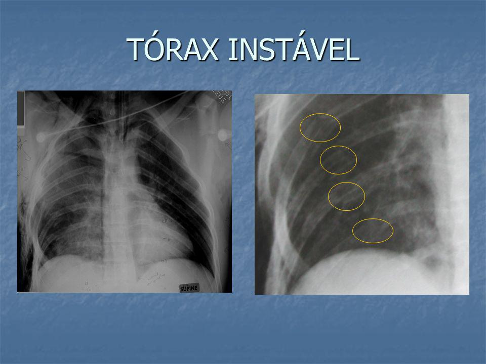 Segmento instável Respiração ParadoxalDor Contusão Pulmonar Hipóxia