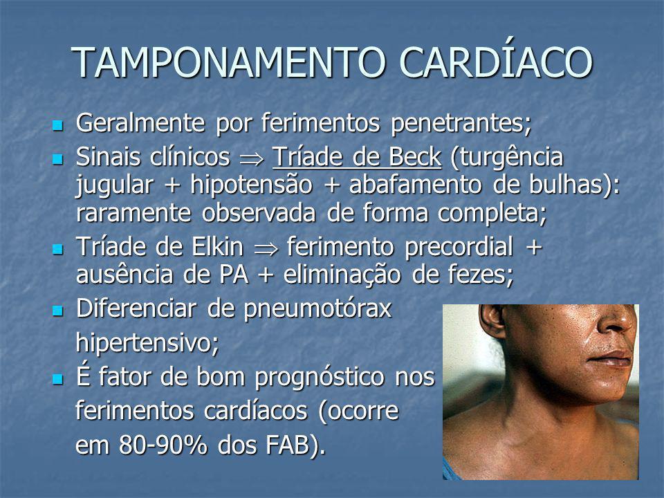 HEMOTÓRAX MACIÇO DRENAGEM INICIAL MAIOR QUE 1500 ML DRENAGEM CONTI- NUADA DE 200 A 300 ML/H POR 2 A 4 HORAS INSTABILIDADE HEMODINÂMICA