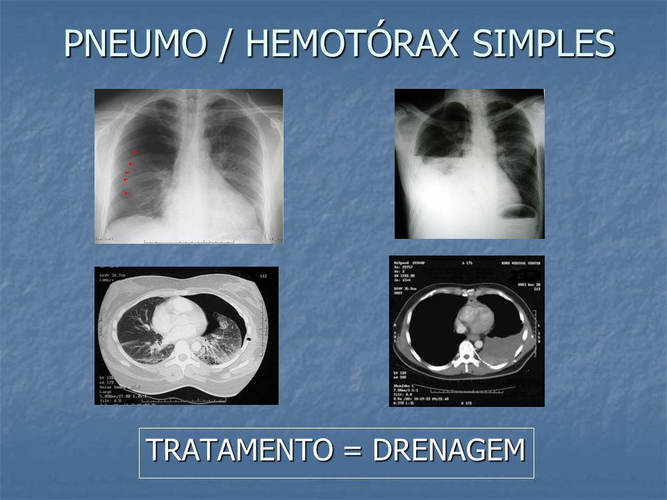 EXAME SECUNDÁRIO – LESÕES COM RISCO DE VIDA Pneumotórax simples Pneumotórax simples Hemotórax Hemotórax Contusão pulmonar Contusão pulmonar Lesões trá