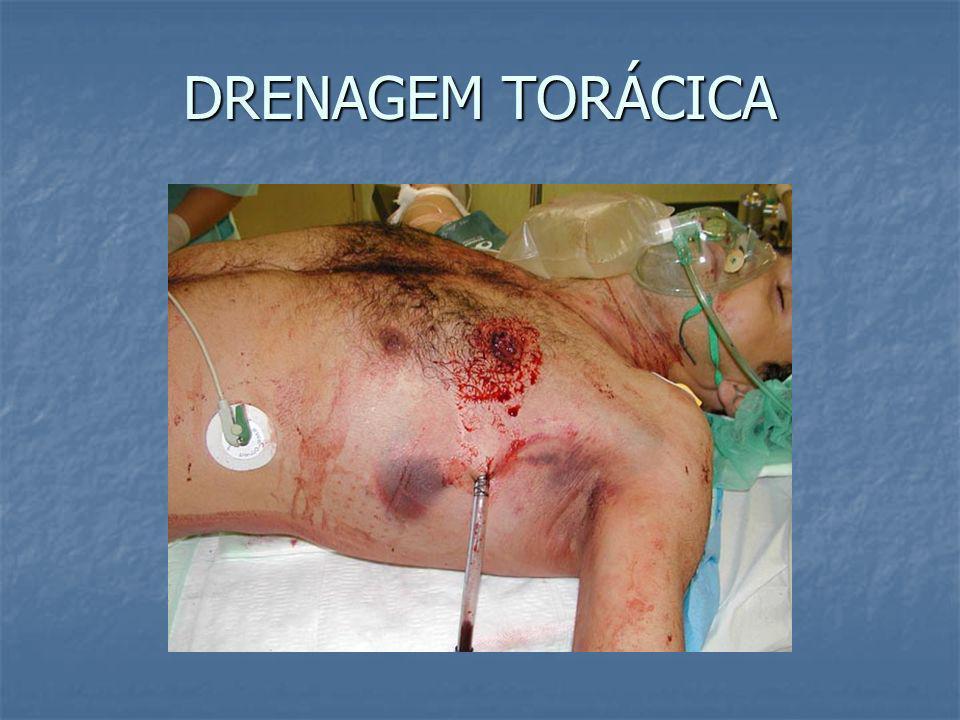 PNEUMO / HEMOTÓRAX SIMPLES TRATAMENTO = DRENAGEM