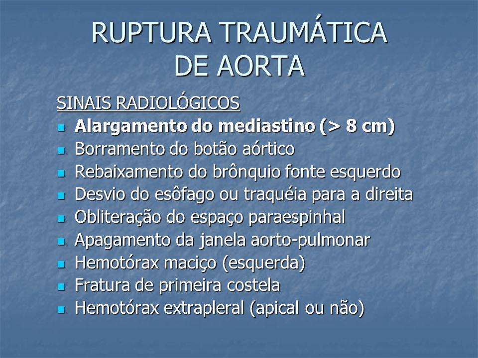 RUPTURA TRAUMÁTICA DE AORTA Alta mortalidade; Alta mortalidade; Se sobrevive = lesão incompleta + hematoma mediastinal (geralmente a hipotensão tem ou