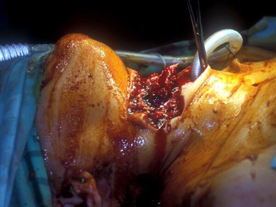 FERIMENTOS TRANSFIXANTES DE MEDIASTINO Estruturas que podem ser lesadas: coração, grandes vasos, traquéia / brônquios, coluna vertebral, esôfago; Estruturas que podem ser lesadas: coração, grandes vasos, traquéia / brônquios, coluna vertebral, esôfago; Identificados pelos orifícios de entrada e saída de um projétil em hemitóraces diferentes ou pelo radio- grama de tórax mostrando o projétil no hemitórax contralateral ao da entrada; Identificados pelos orifícios de entrada e saída de um projétil em hemitóraces diferentes ou pelo radio- grama de tórax mostrando o projétil no hemitórax contralateral ao da entrada;