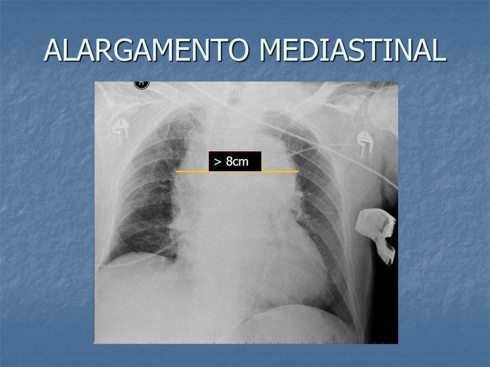 RUPTURA TRAUMÁTICA DE AORTA SINAIS RADIOLÓGICOS Alargamento do mediastino (> 8 cm) Alargamento do mediastino (> 8 cm) Borramento do botão aórtico Borr