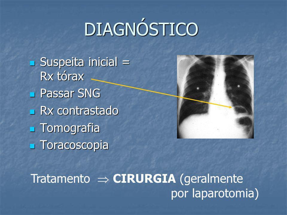 RUPTURA DIAFRAGMÁTICA Geralmente ocorre à esquerda (ausência do fígado); Geralmente ocorre à esquerda (ausência do fígado); Trauma contuso: grandes ru