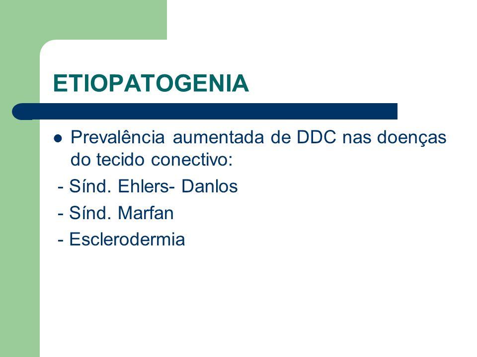 ETIOPATOGENIA Prevalência aumentada de DDC nas doenças do tecido conectivo: - Sínd. Ehlers- Danlos - Sínd. Marfan - Esclerodermia
