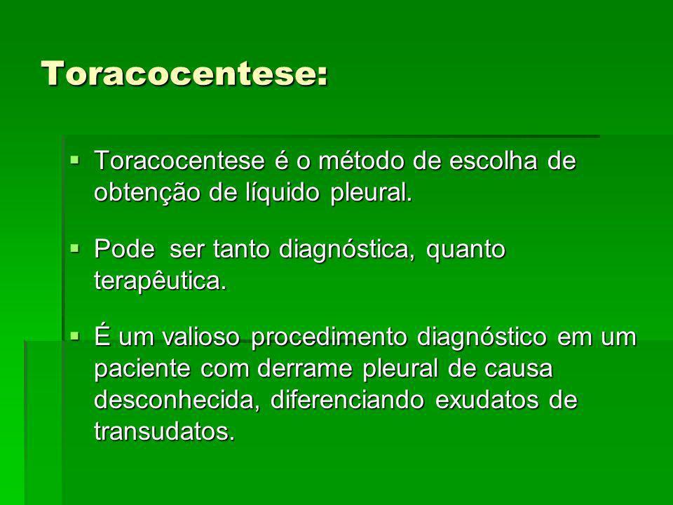 Toracocentese: Toracocentese é o método de escolha de obtenção de líquido pleural. Toracocentese é o método de escolha de obtenção de líquido pleural.