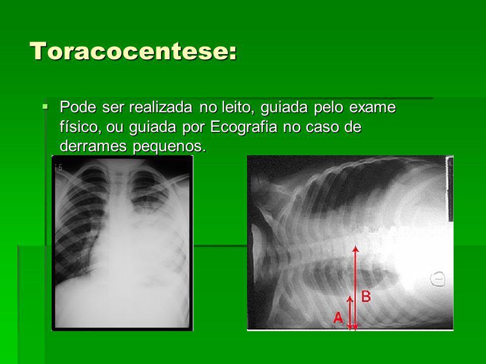Toracocentese: Pode ser realizada no leito, guiada pelo exame físico, ou guiada por Ecografia no caso de derrames pequenos. Pode ser realizada no leit