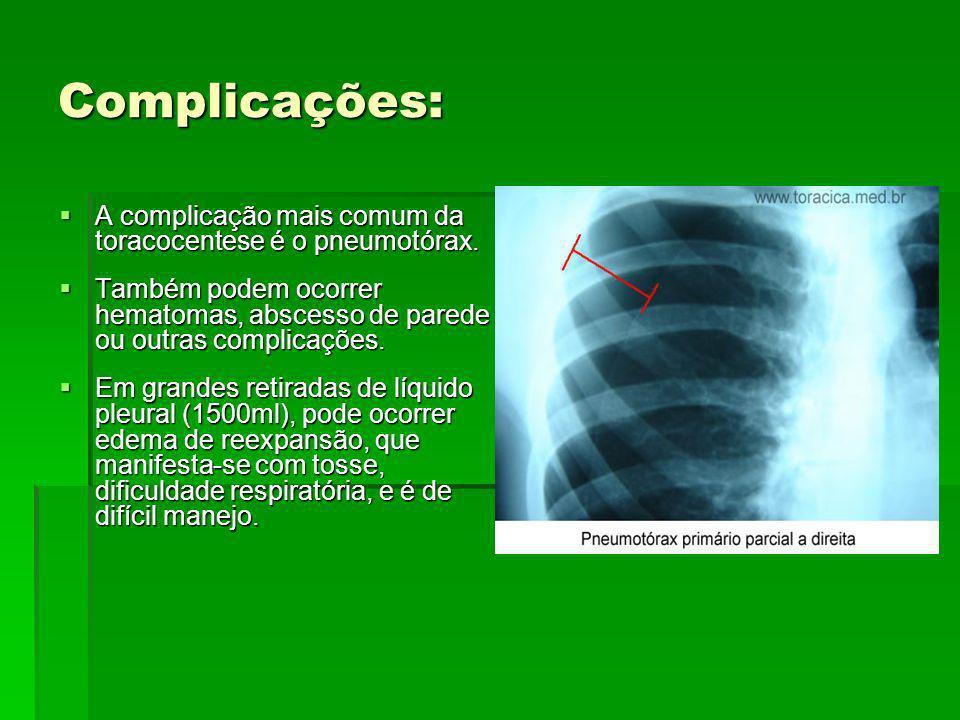 Complicações: A complicação mais comum da toracocentese é o pneumotórax. A complicação mais comum da toracocentese é o pneumotórax. Também podem ocorr