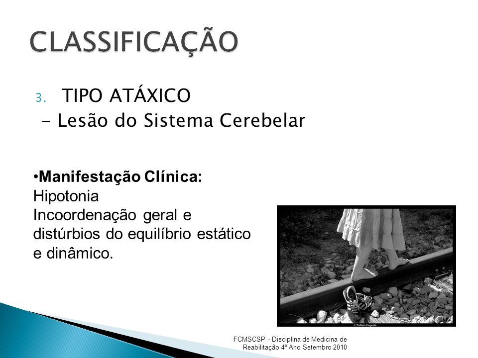 3. TIPO ATÁXICO - Lesão do Sistema Cerebelar Manifestação Clínica: Hipotonia Incoordenação geral e distúrbios do equilíbrio estático e dinâmico. FCMSC