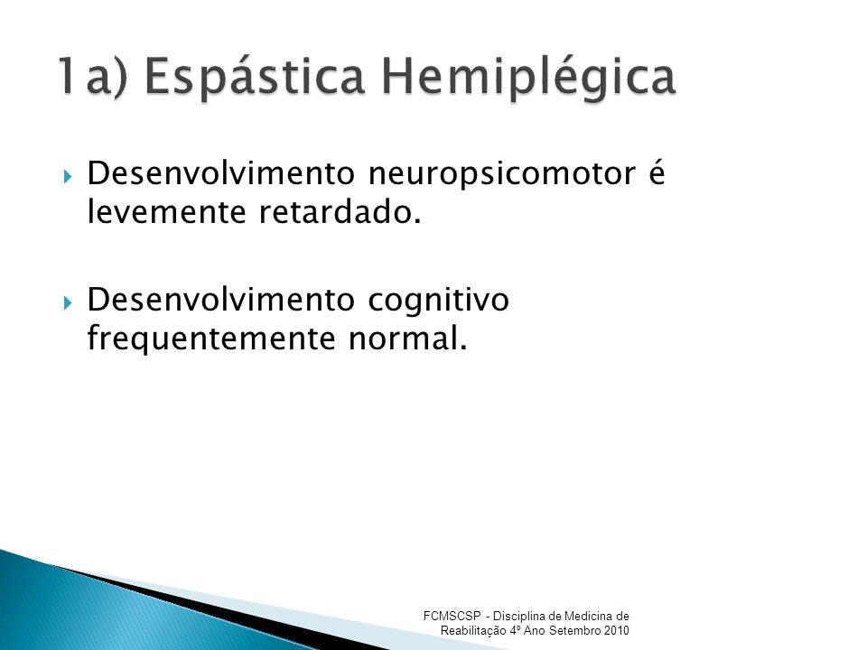 Desenvolvimento neuropsicomotor é levemente retardado. Desenvolvimento cognitivo frequentemente normal. FCMSCSP - Disciplina de Medicina de Reabilitaç