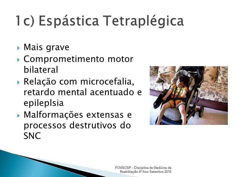 Mais grave Comprometimento motor bilateral Relação com microcefalia, retardo mental acentuado e epileplsia Malformações extensas e processos destrutiv