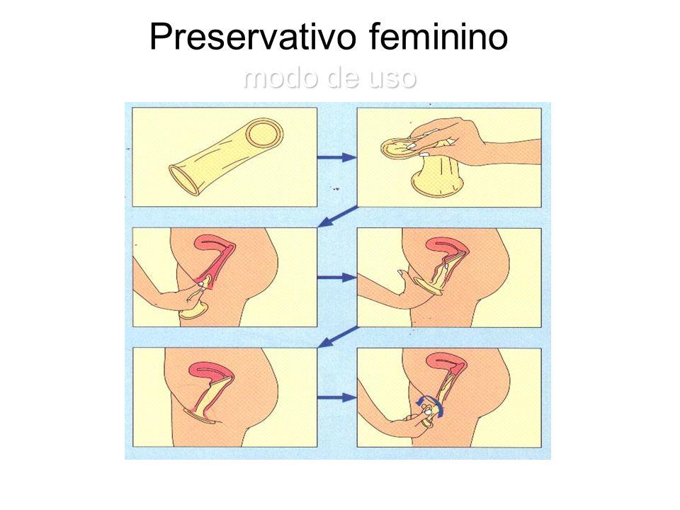 modo de uso Preservativo feminino modo de uso