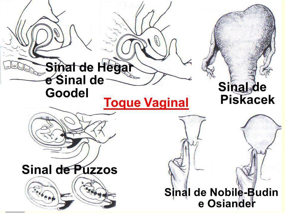 Toque Vaginal Sinal de Nobile-Budin e Osiander Sinal de Puzzos Sinal de Piskacek Sinal de Hegar e Sinal de Goodel