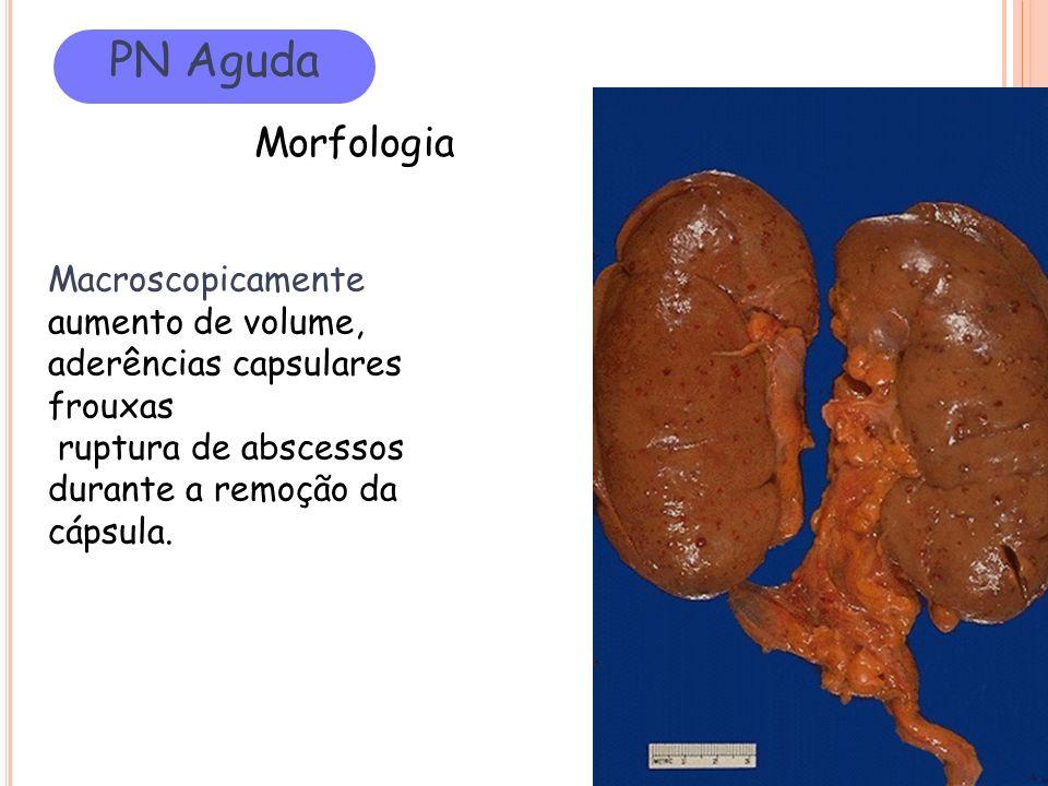 PN Aguda Morfologia Macroscopicamente aumento de volume, aderências capsulares frouxas ruptura de abscessos durante a remoção da cápsula.