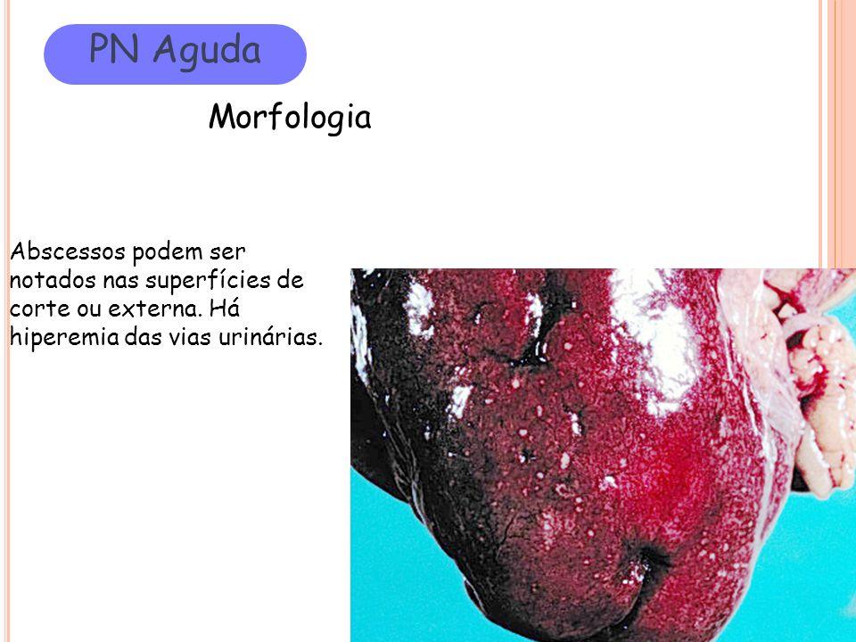 Abscessos podem ser notados nas superfícies de corte ou externa. Há hiperemia das vias urinárias. PN Aguda Morfologia
