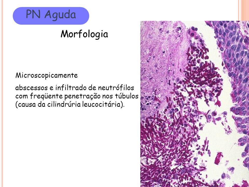 PN Aguda Morfologia Microscopicamente abscessos e infiltrado de neutrófilos com freqüente penetração nos túbulos (causa da cilindrúria leucocitária).