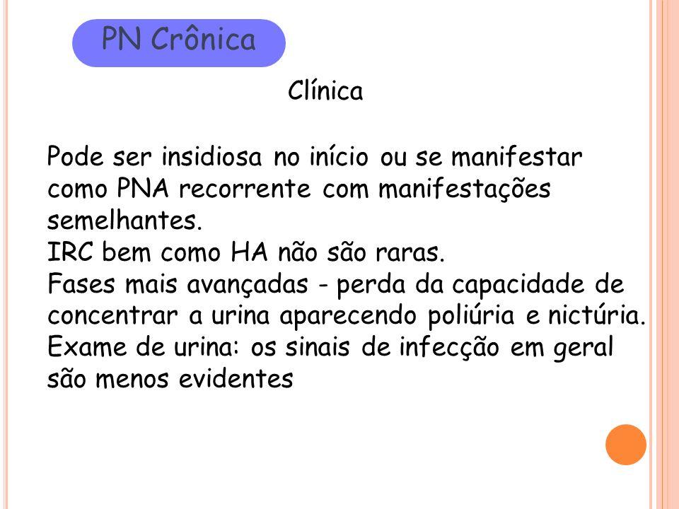 PN Crônica Clínica Pode ser insidiosa no início ou se manifestar como PNA recorrente com manifestações semelhantes. IRC bem como HA não são raras. Fas