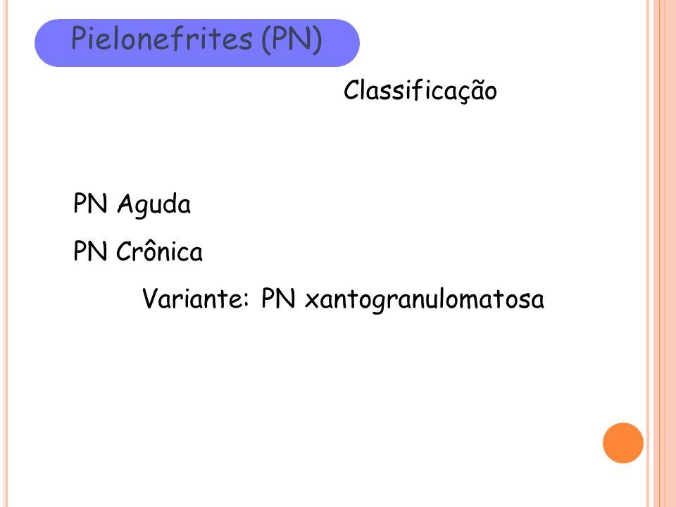 Pielonefrites (PN) Classificação PN Aguda PN Crônica Variante: PN xantogranulomatosa