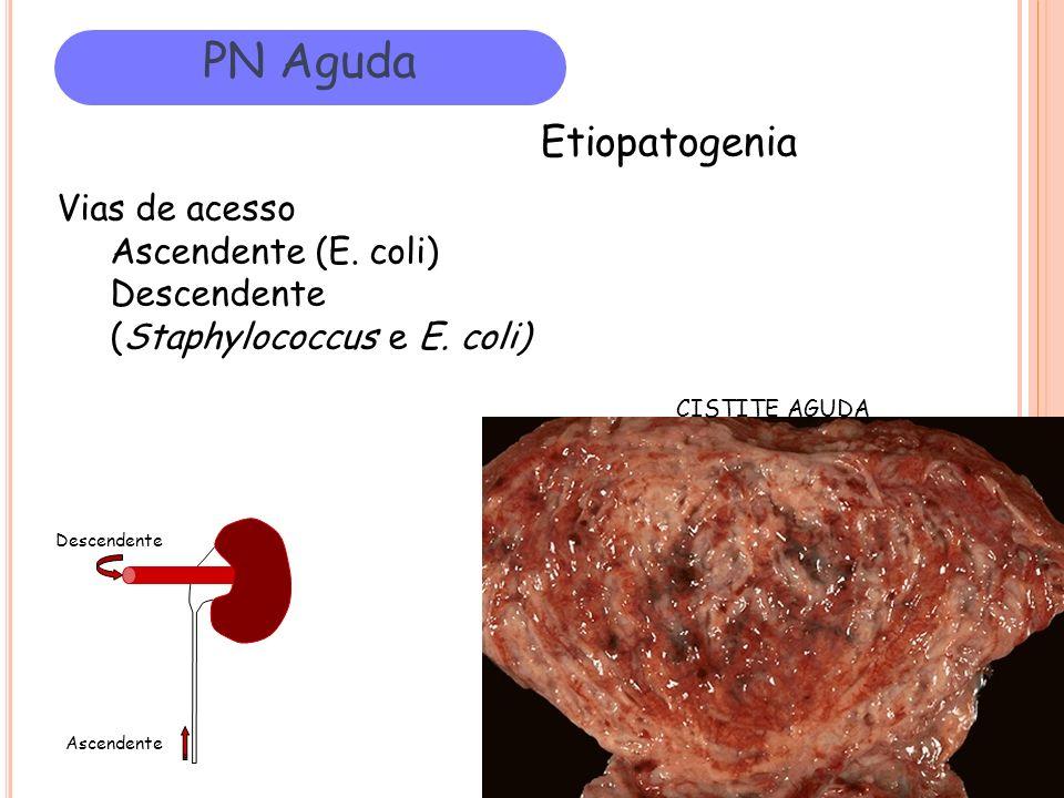PN Aguda Etiopatogenia Vias de acesso Ascendente (E. coli) Descendente (Staphylococcus e E. coli) Ascendente Descendente CISTITE AGUDA