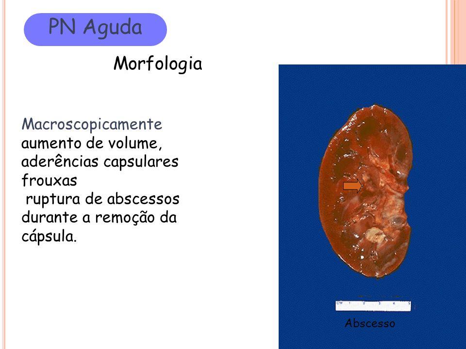 PN Aguda Morfologia Macroscopicamente aumento de volume, aderências capsulares frouxas ruptura de abscessos durante a remoção da cápsula. Abscesso
