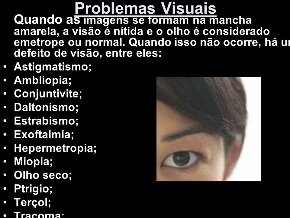 Problemas Visuais Quando as imagens se formam na mancha amarela, a visão é nítida e o olho é considerado emetrope ou normal. Quando isso não ocorre, h