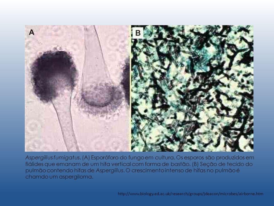 Aspergillus fumigatus. (A) Esporóforo do fungo em cultura. Os esporos são produzidos em fiálides que emanam de um hifa vertical com forma de bastão. (