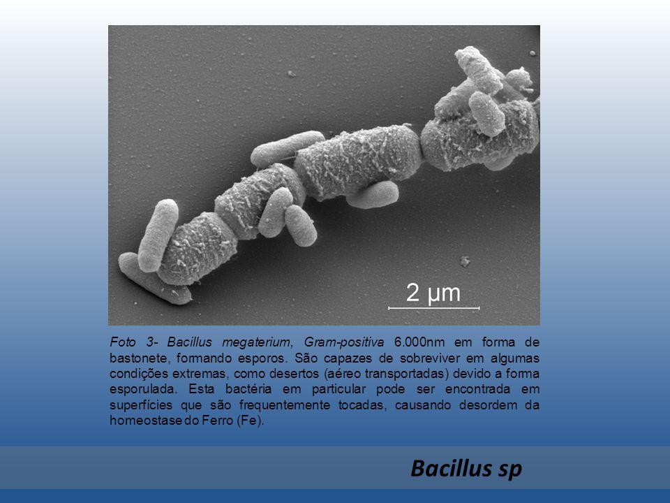 Foto 3- Bacillus megaterium, Gram-positiva 6.000nm em forma de bastonete, formando esporos. São capazes de sobreviver em algumas condições extremas, c