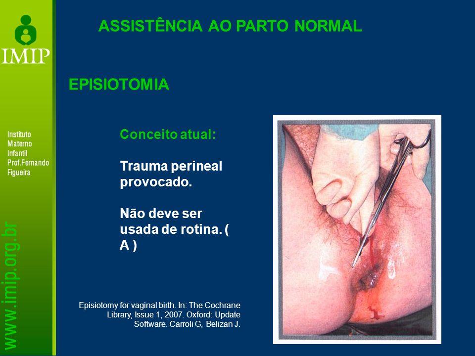 ASSISTÊNCIA AO PARTO NORMAL EPISIOTOMIA Conceito atual: Trauma perineal provocado. Não deve ser usada de rotina. ( A ) Episiotomy for vaginal birth. I