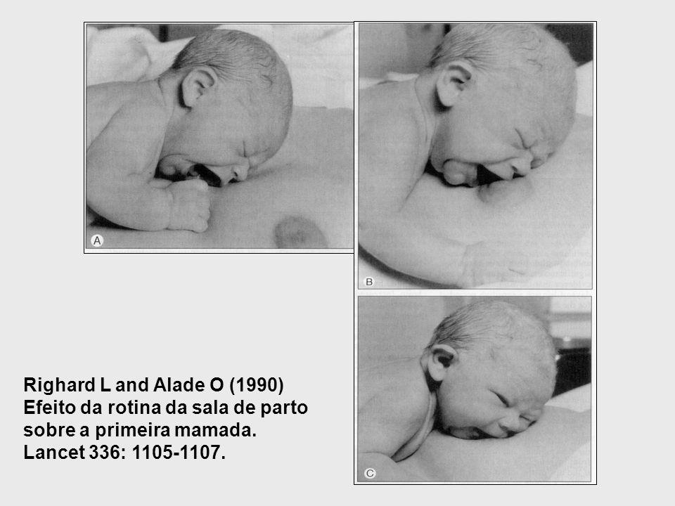 Righard L and Alade O (1990) Efeito da rotina da sala de parto sobre a primeira mamada. Lancet 336: 1105-1107.