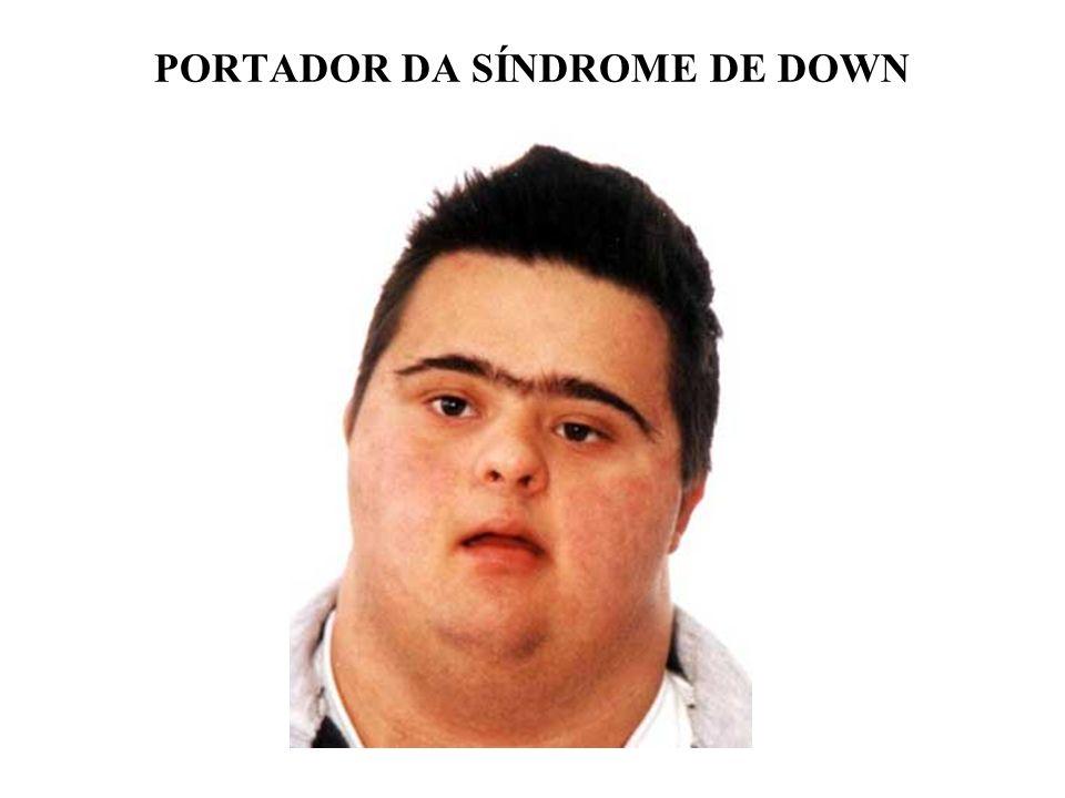PORTADOR DA SÍNDROME DE DOWN