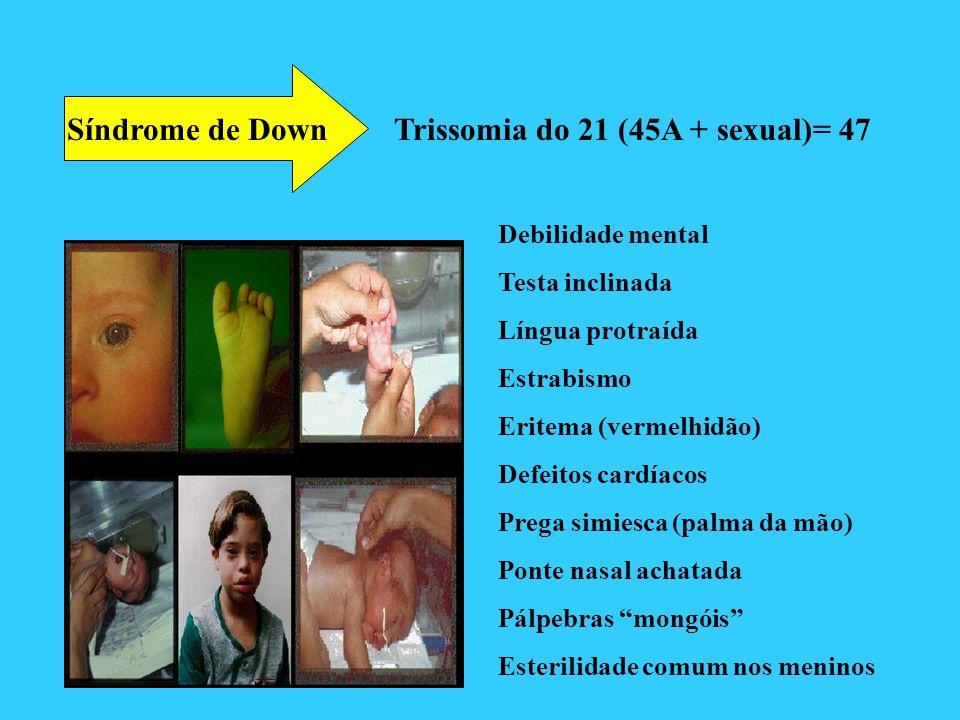 Síndrome de Down Trissomia do 21 (45A + sexual)= 47 Debilidade mental Testa inclinada Língua protraída Estrabismo Eritema (vermelhidão) Defeitos cardí