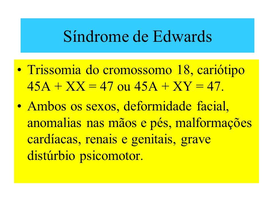 Síndrome de Edwards Trissomia do cromossomo 18, cariótipo 45A + XX = 47 ou 45A + XY = 47. Ambos os sexos, deformidade facial, anomalias nas mãos e pés