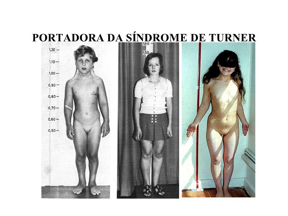 Resultado de imagem para sindrome de turner