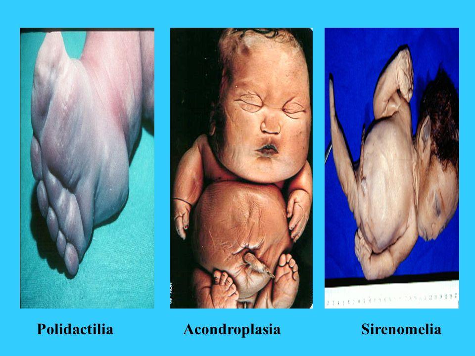AcondroplasiaSirenomeliaPolidactilia