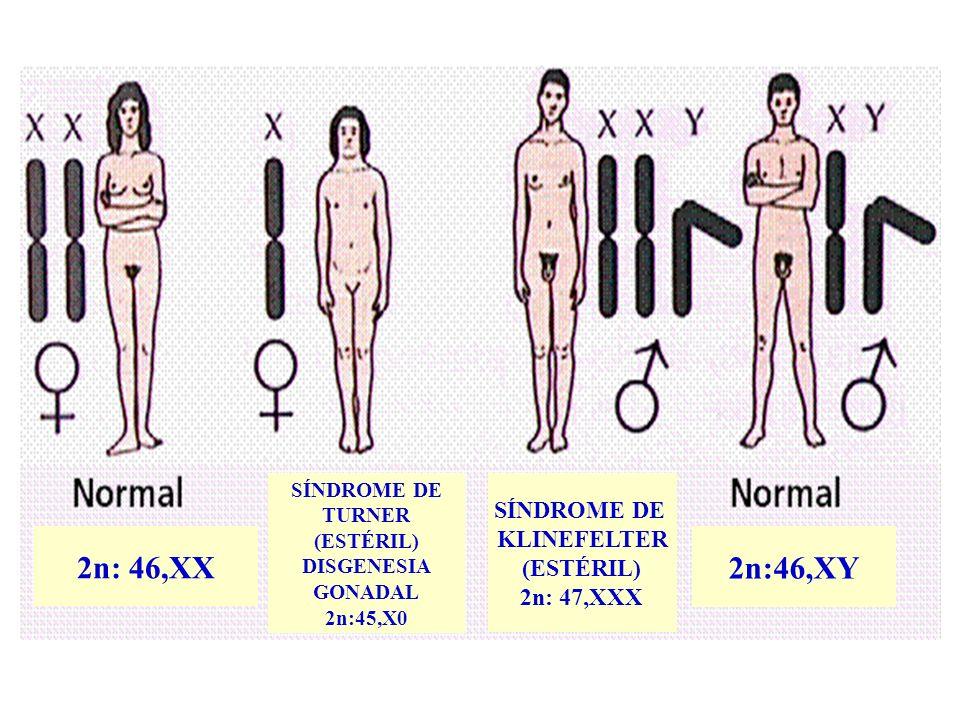 SÍNDROME DE TURNER (ESTÉRIL) DISGENESIA GONADAL 2n:45,X0 2n: 46,XX SÍNDROME DE KLINEFELTER (ESTÉRIL) 2n: 47,XXX 2n:46,XY