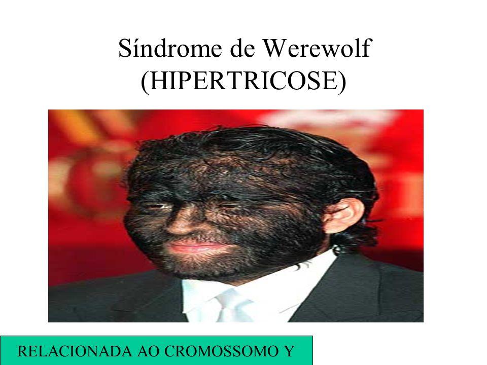 Síndrome de Werewolf (HIPERTRICOSE) RELACIONADA AO CROMOSSOMO Y