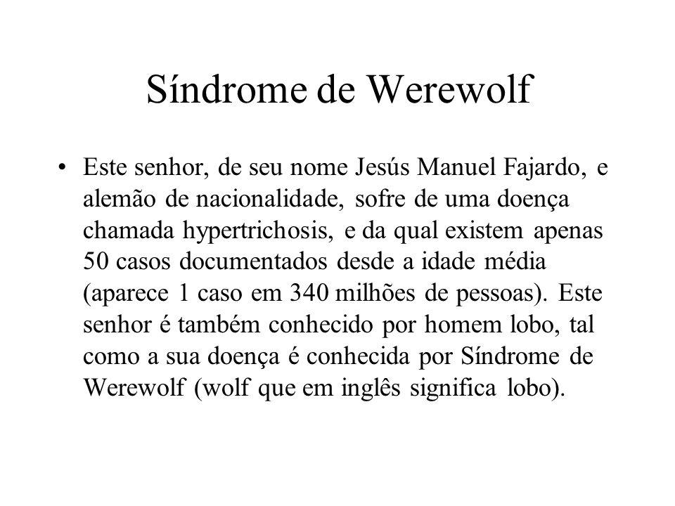 Síndrome de Werewolf Este senhor, de seu nome Jesús Manuel Fajardo, e alemão de nacionalidade, sofre de uma doença chamada hypertrichosis, e da qual e
