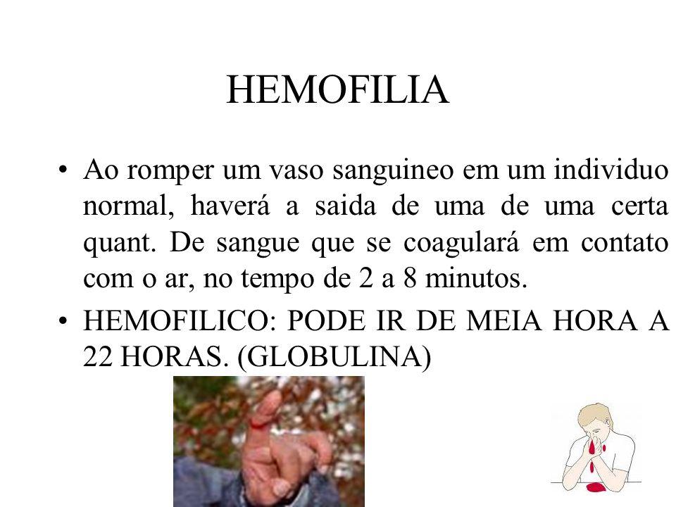 HEMOFILIA Ao romper um vaso sanguineo em um individuo normal, haverá a saida de uma de uma certa quant. De sangue que se coagulará em contato com o ar