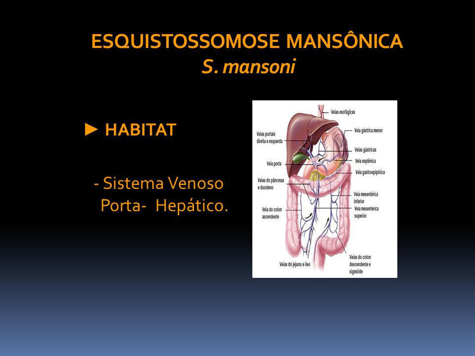 ESQUISTOSSOMOSE MANSÔNICA S. mansoni HABITAT - Sistema Venoso Porta- Hepático.